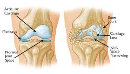 Total-Knee2