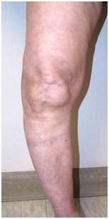 Total-Knee4